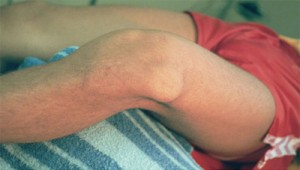 patelladislocation1